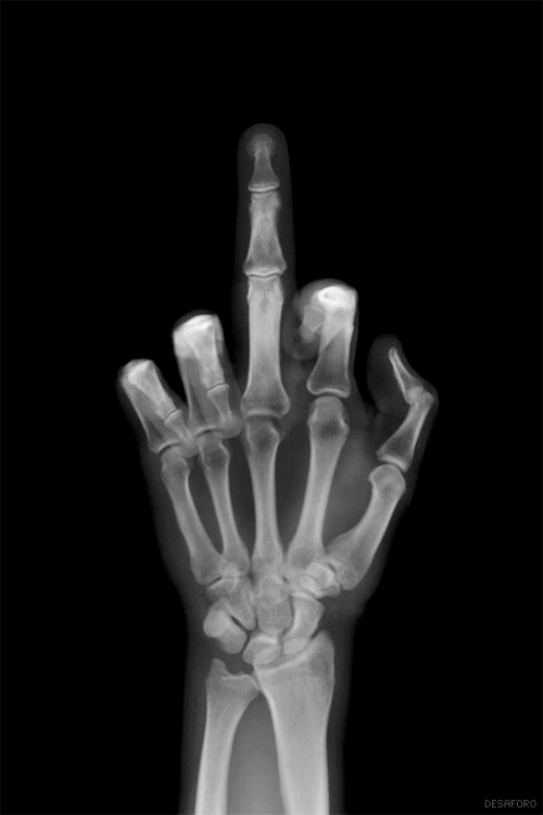 bones, funny, middle finger, photo, x-ray